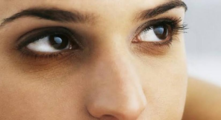 Photo of 5 Great Tips To Get Rid Of Dark Circles
