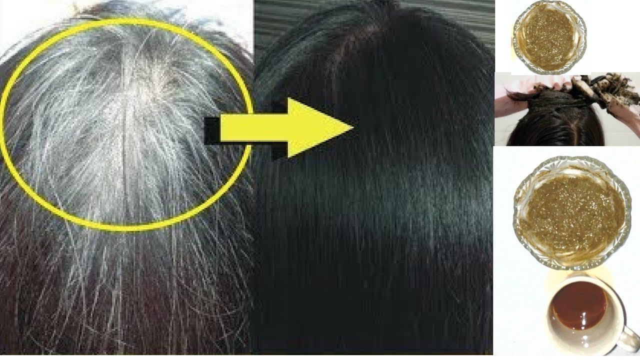 Photo of Why do premature hair turn white? 7 Home Remedies for Black Hair